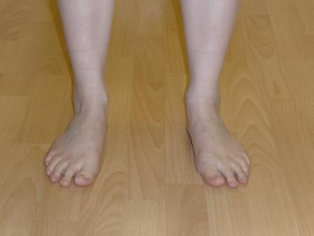 picture of patient with flat feet & collapsed arch